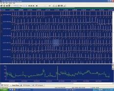 Lifescreen/Lifescreen apnea EKG