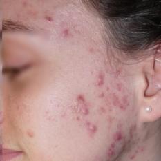 Ošetrenie - odstránenie akné PRED
